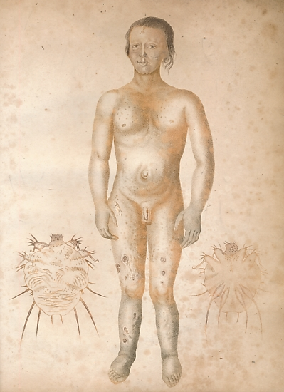 ADAMS, JOSEPH - Observations on Morbid Poisons, Chronic and Acute. The First Comprehending Syphilis, Yaws, Sivvens, Elephantiasis, and the Anomala Confounded with Them. The Second the Acute Contagions, Particularly the Variolous & Vaccine