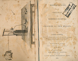 NOOTH, JAMES - Observations on the Treatment of Scirrhous Tumours and Cancers of the Breast