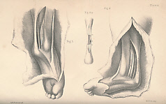 ADAMS, WILLIAM - Club-Foot: Is Causes, Pathology, and Treatment. Being the Essay to Which the Jacksonian Prize for 1864, Given by the Royal College of Surgeons, Was Awarded