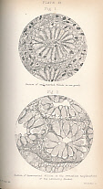 CRIPPS, W HARRISON - Cancer of the Rectum: Its Pathology, Diagnosis, and Treatment Including a Portion of the Jacksonian Prize Essay for 1876