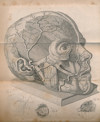 SCARPA, ANTONIO; BRIGGS, JAMES [TRANS.] - A Treatise on the Principle Diseases of the Eyes