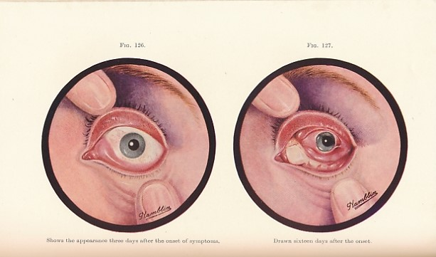 NEAME, HUMPHREY; BLACK, GEORGE; &C - Transactions of the Ophthalmological Society of the United Kingdom. Volume LXIX (69). Session 1949